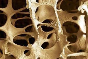 La osteoporosis también afecta a los hombres