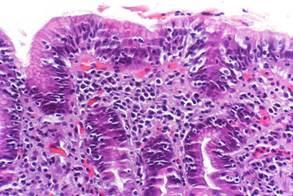 Linfoma gastrointestinal: el nuevo imitador