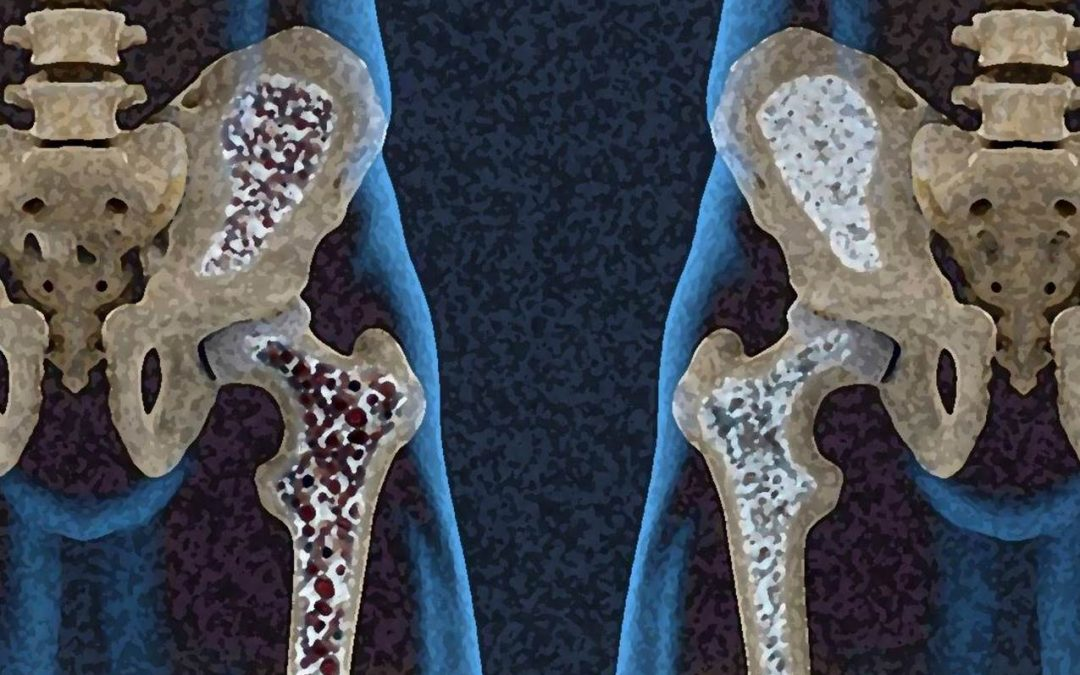 Osteoporosis masculina. ¿Cómo se relacionan los huesos con el pene?