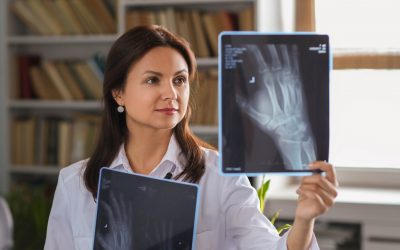 Osteoporosis: todo lo que necesitas saber